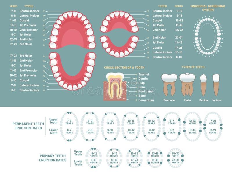牙解剖学图 正牙医生人的牙损失图、牙齿计划和infographic畸齿矫正术医疗的传染媒介 皇族释放例证