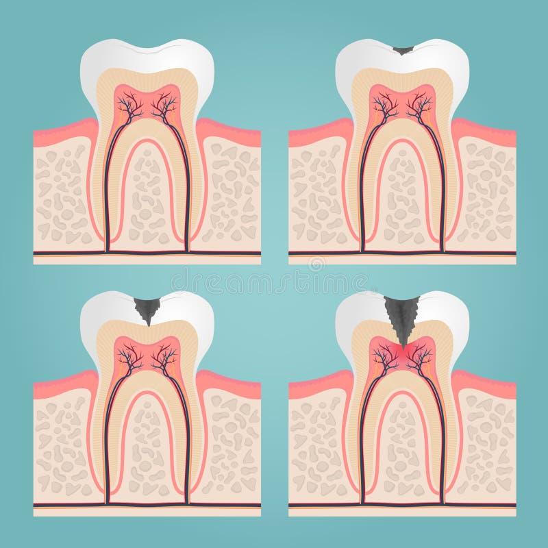 牙解剖学 皇族释放例证