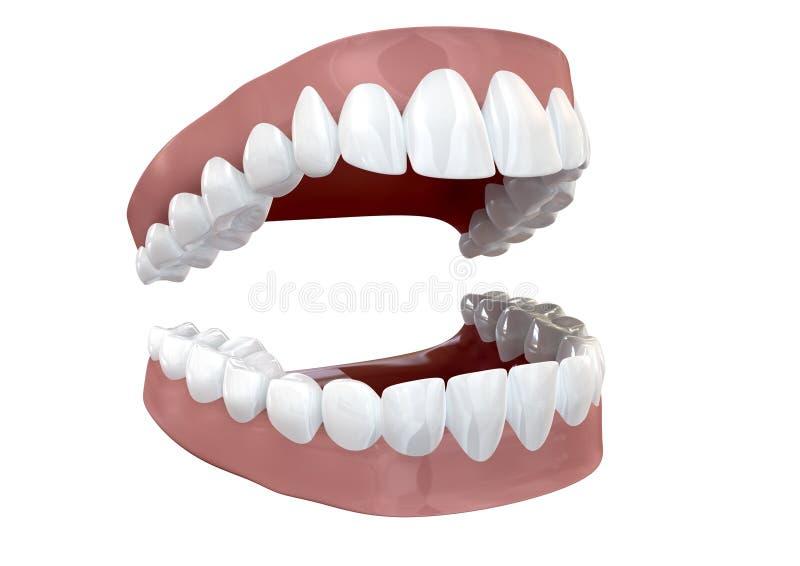 牙设置了开放查出 库存例证