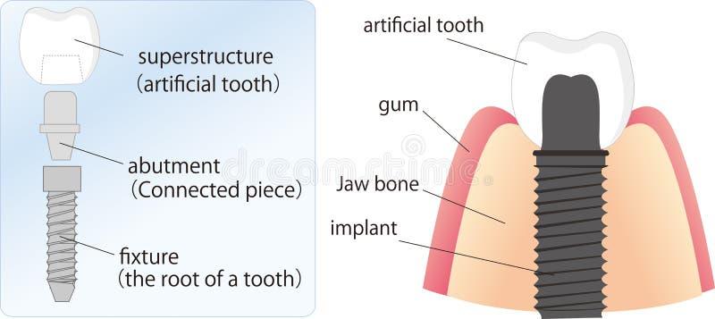 牙齿例证植入管 库存照片