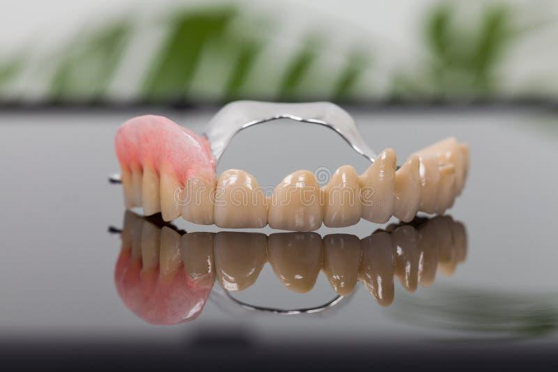 牙齿假肢在实验室 库存图片