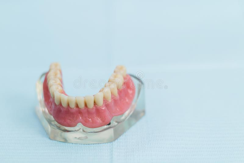 牙齿假肢零件,口头修复 免版税库存图片