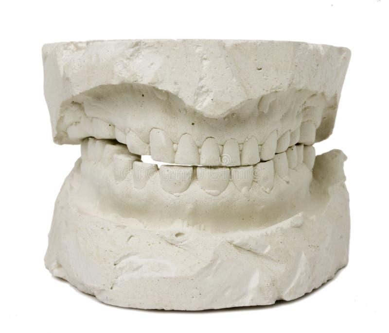牙齿假肢 库存照片