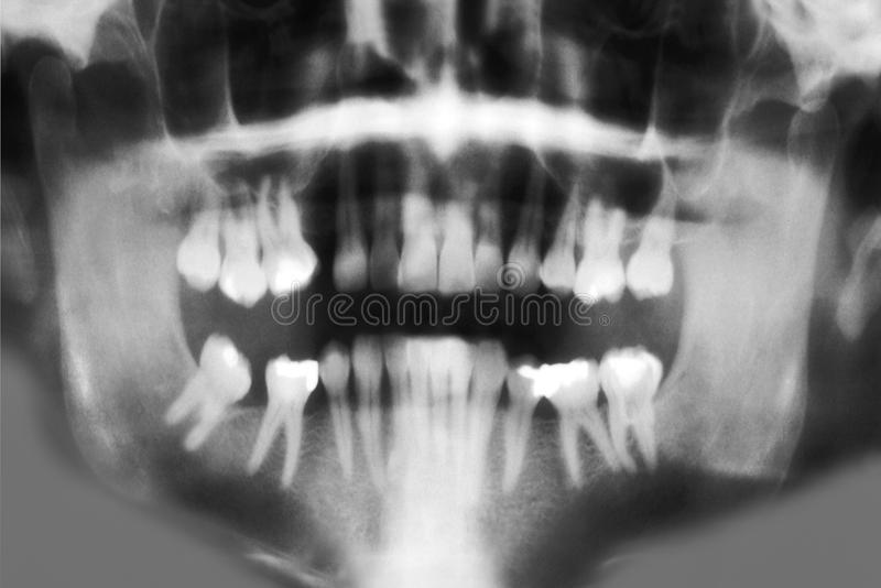 牙齿充分的嘴光芒扫描x 库存照片