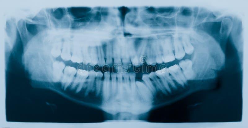 牙齿光芒x X-射线 库存照片