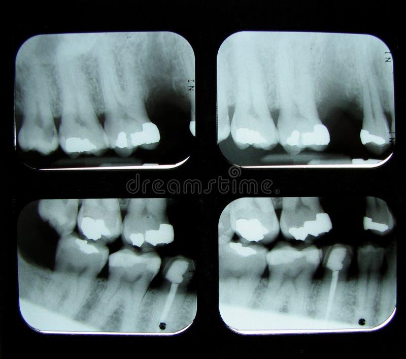 牙齿光芒x 库存图片