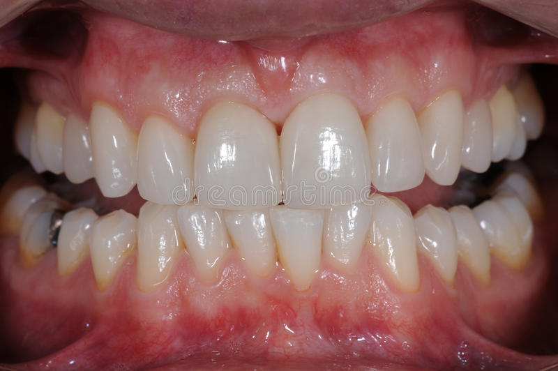 牙齿全景 免版税库存照片