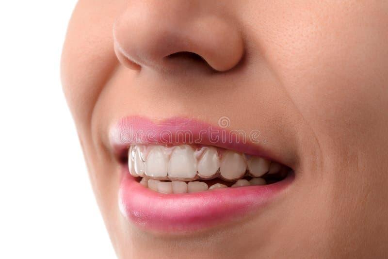 牙齿卫生保健 无形的括号 库存照片
