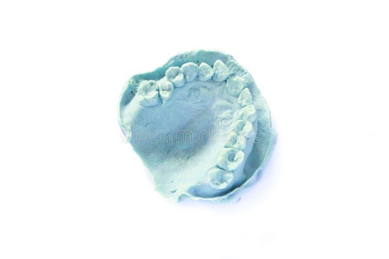牙齿印象模型 免版税库存图片