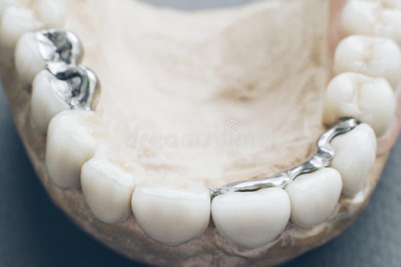 牙齿安放下颌陶瓷金属假牙 库存图片