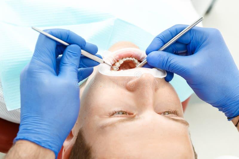 牙齿核对pacient 库存照片