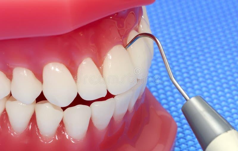 牙齿检查 免版税库存照片