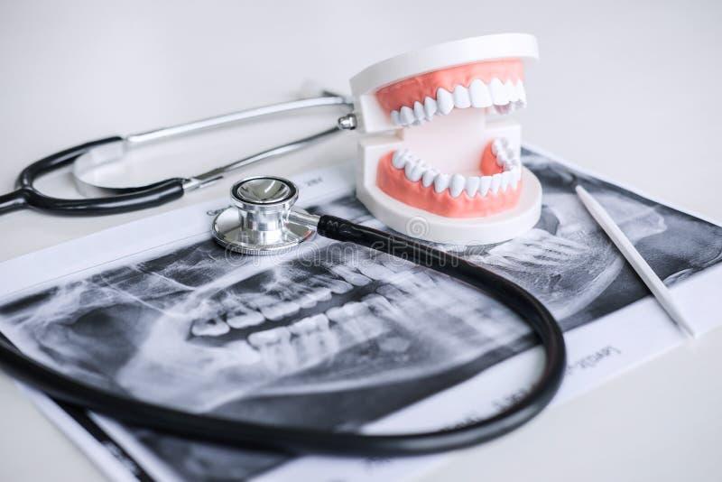 牙齿模型和设备在牙用于牙齿和牙科的治疗和听诊器的X光片由牙医 免版税图库摄影
