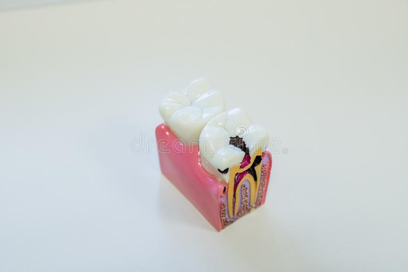 牙齿模型礼物共同的牙齿疾病例如龋,智齿 口头健康 教育的牙模型 顶层 图库摄影
