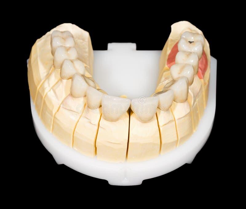 牙齿氧化锆桥梁 库存照片
