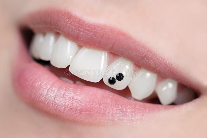 牙齿珠宝 免版税库存照片