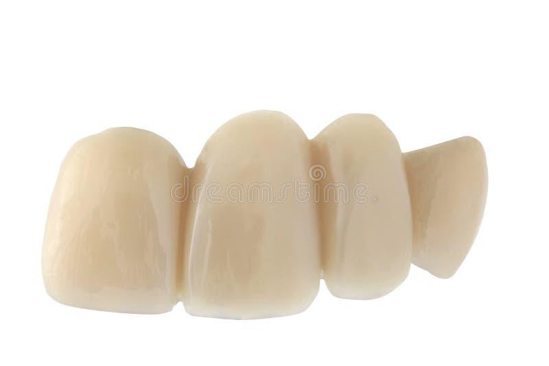 牙齿的桥梁 免版税库存图片
