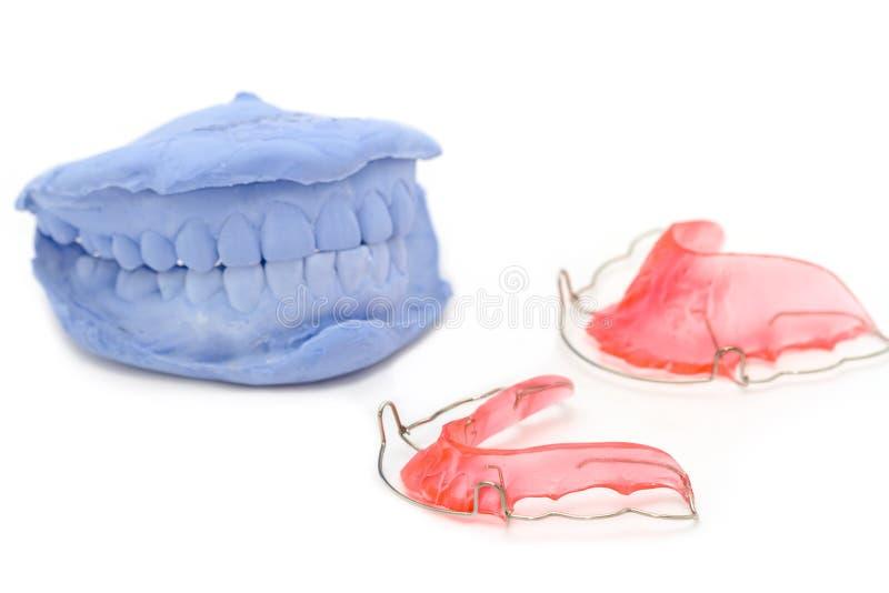 牙齿石膏模型和牙齿括号 图库摄影
