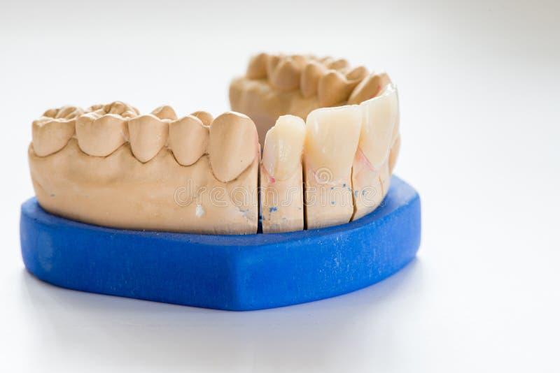 牙齿石膏模型在牙医实验室办公室-特写镜头 有在白色背景隔绝的瓷牙的石膏假牙 库存照片