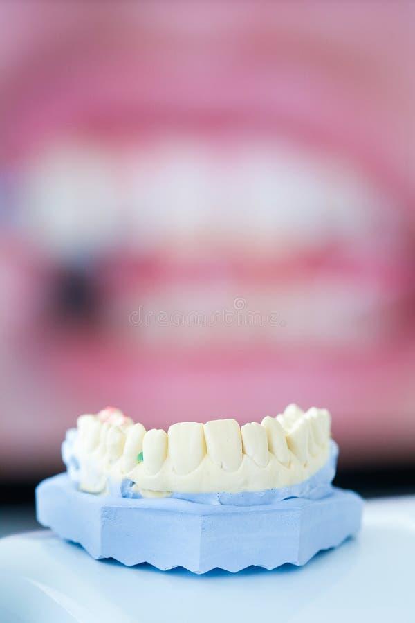 牙齿石膏模子 免版税库存图片