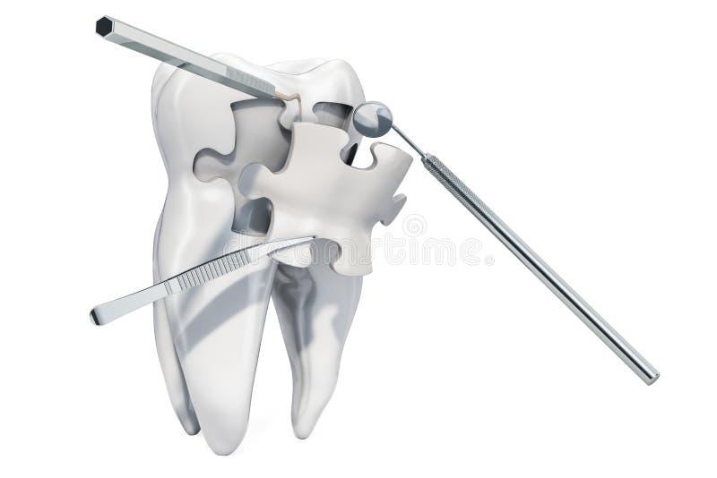 牙齿补救和治疗概念,3D翻译 皇族释放例证