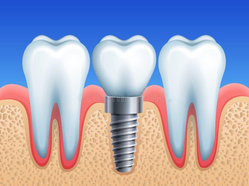 牙齿要素植入管查出的视图白色 库存例证