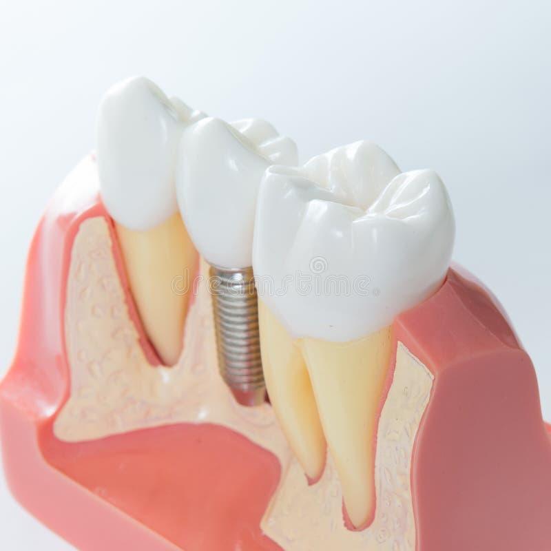 牙齿要素植入管查出的视图白色 库存图片