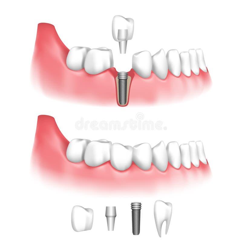 牙齿要素植入管查出的视图白色 皇族释放例证