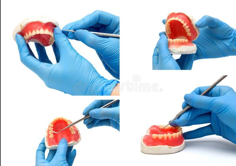 牙齿仪器拼贴画  免版税库存照片