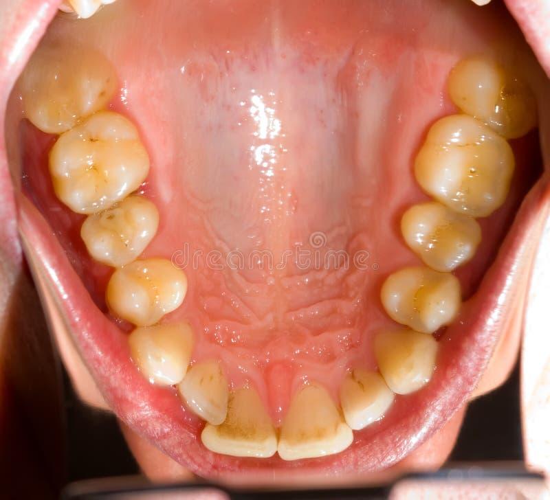 牙齿photograpy 库存图片