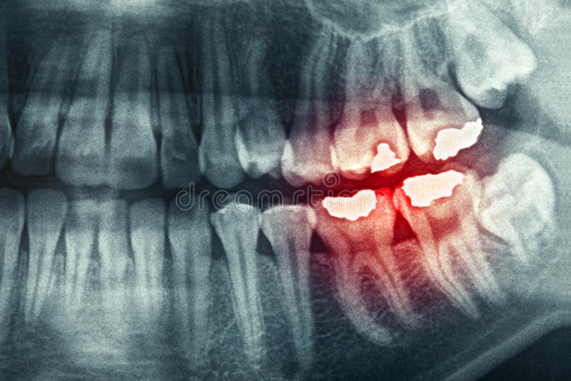 牙齿X-射线 库存图片