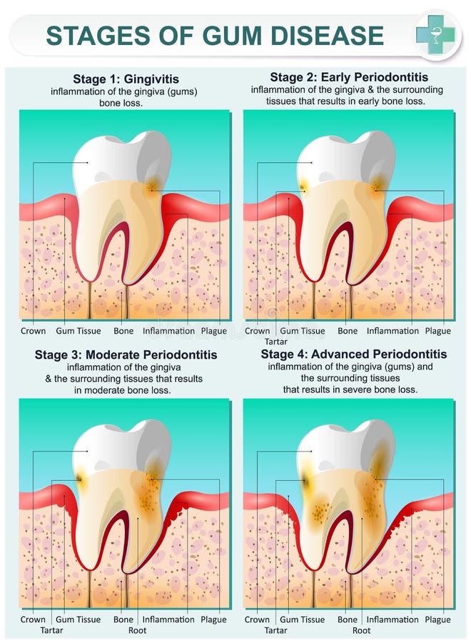 牙龈炎阶段  向量例证