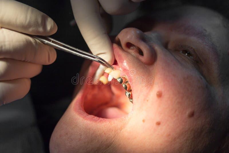 牙医工作与诊所的客户 库存图片
