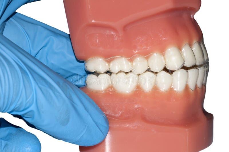 牙医手展示舒适和可移动的直线对准器 免版税库存图片