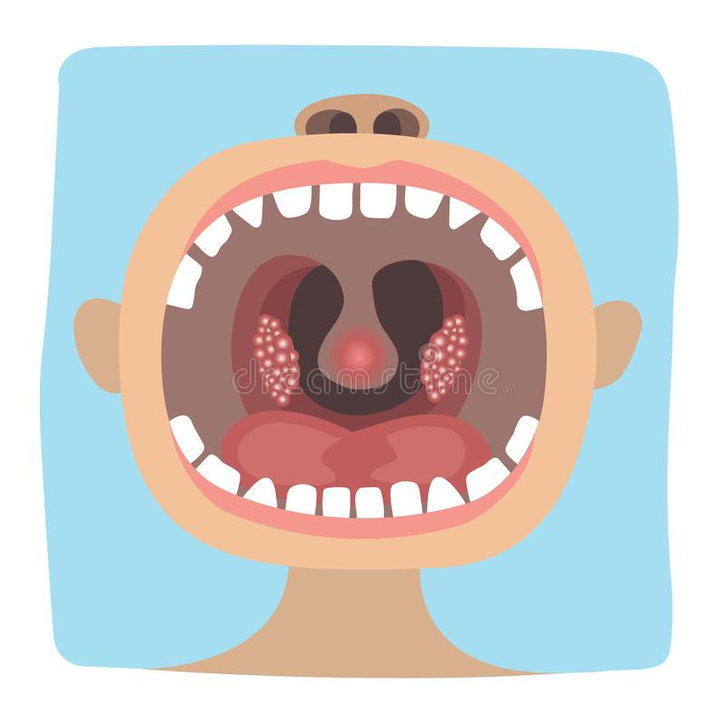 牙 向量例证