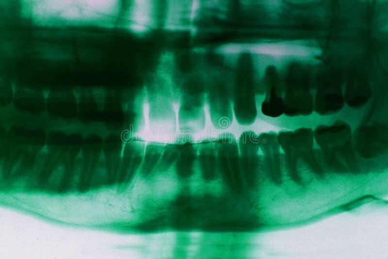 牙X-射线图片 免版税库存图片