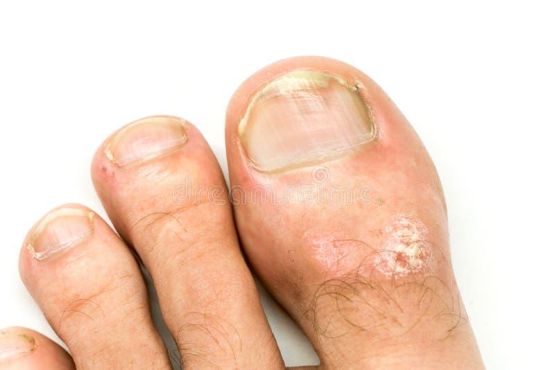 牛皮癣特写镜头寻常和真菌在供以人员脚与匾、疹和补丁的手指钉子,在白色背景 免版税库存图片