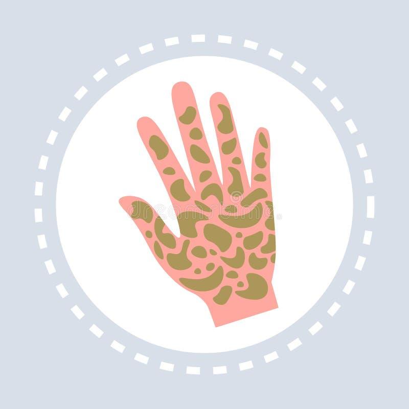 牛皮癣胫骨疾病平展人的棕榈象医疗保健医疗商标医学和健康标志概念 库存例证