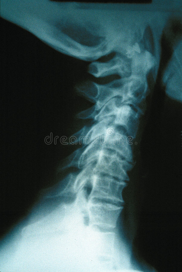 特写镜头人力脖子X-射线 库存照片