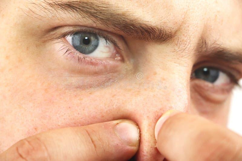 特写镜头看照相机的画象年轻人,紧压粉刺或鸥在鼻子 作为背景的特写镜头卫生学的 库存图片