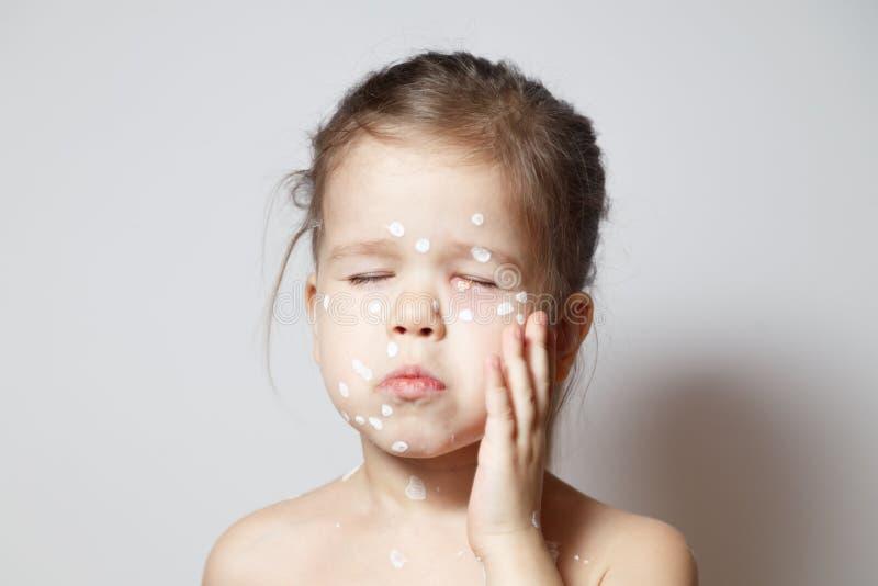 特写镜头面孔逗人喜爱的女孩以水痘病毒或水痘泡影疹,结膜炎,疼痛眼睛,红色斑点盖了锌 图库摄影