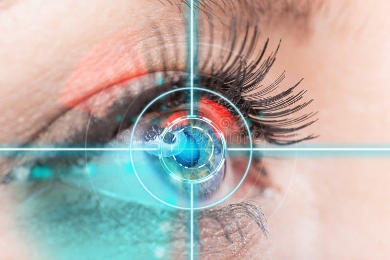 特写镜头与激光医学的妇女眼睛 库存图片