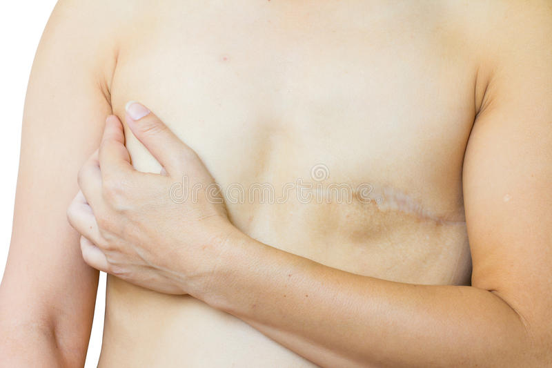 特写镜头亚裔妇女以在乳房手术以后的大伤痕,乳房c 库存照片