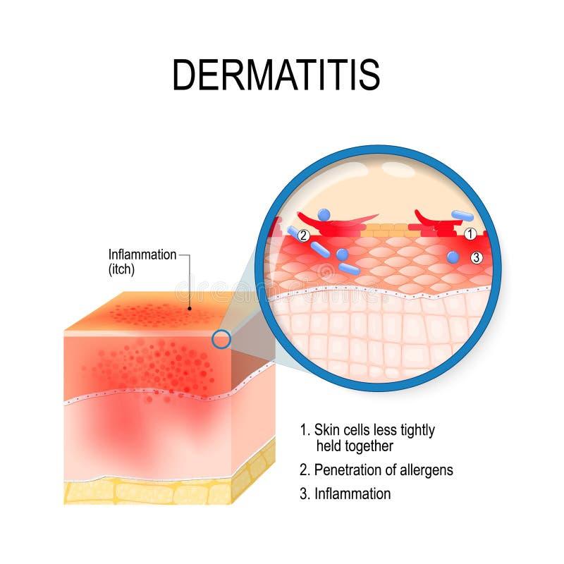 特应性之皮肤炎遗传性过敏症的湿疹 向量例证