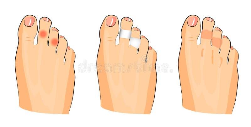 玉米的例证在脚趾的 皇族释放例证