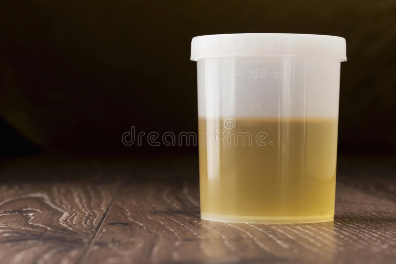 瓶子尿 免版税库存图片