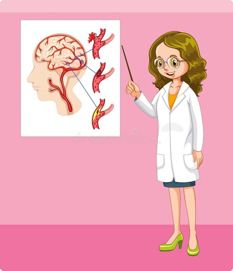 医生和脑瘤图 向量例证