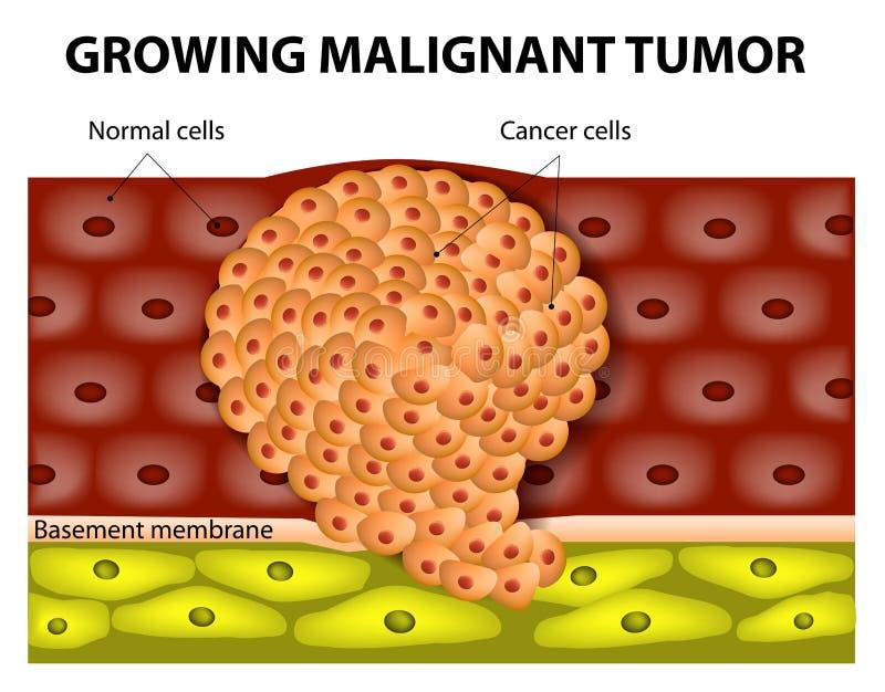 生长恶瘤 向量例证