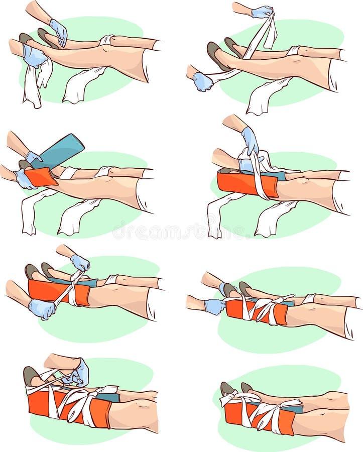 用夹板固定一个断腿 皇族释放例证