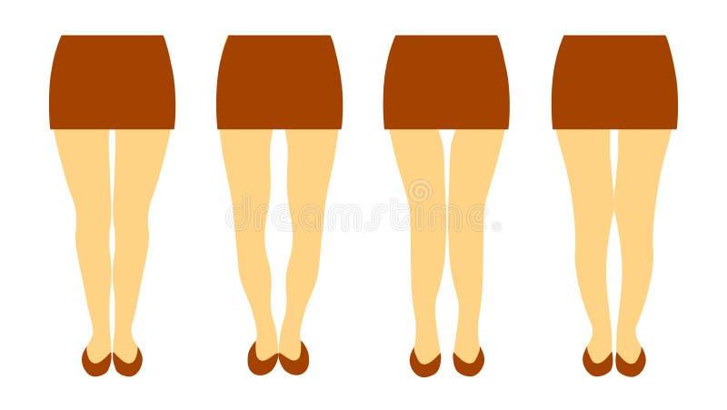 用妇女腿不同的形状的传染媒介例证  库存例证